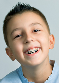 early-orthodontic-treatment